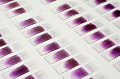 Blood film Stock Image