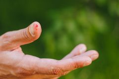 Blood on a finger on a blurred green background of grass and trees. Callous hand of a hard worker. Close-up. callus on hand.  royalty free stock photos