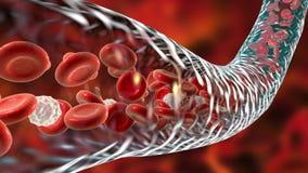 Blood flow, red blood cells and leukocytes moving along blood vessel