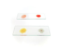 Blood group tasting of an O positive doner, with blood drop after mixing with blood grouping reagent. Selective focus on A group testing Royalty Free Stock Photos