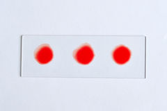 Blood group testing Royalty Free Stock Photography