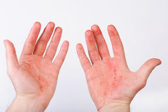 Blood on hands Royalty Free Stock Images