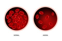 Anemia. blood of healthy human and blood vessel with anemia. stock illustration