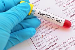 Blood for hepatitis C test. Test tube with blood sample for hepatitis C test Royalty Free Stock Photo