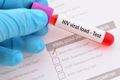 Blood for HIV viral load test. Test tube with blood sample for HIV viral load test Stock Image