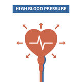 Blood pressure concept Royalty Free Stock Photography