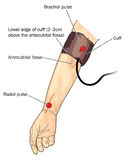 Blood pressure cuff on arm Stock Images