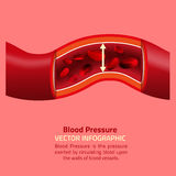 Blood Pressure Infographic Stock Images