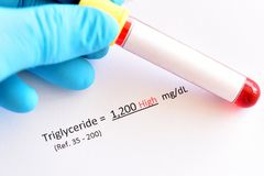 Abnormal high triglyceride test result. Blood sample with abnormal high triglyceride test result Royalty Free Stock Image