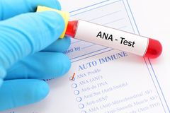 ANA test. Blood sample for ANA test, autoimmune diagnosis Royalty Free Stock Photography