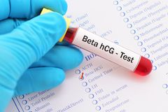 Beta hCG test Royalty Free Stock Photos