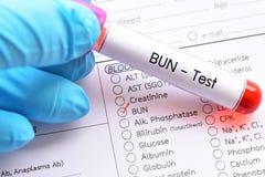 Blood sample for BUN test Royalty Free Stock Photo