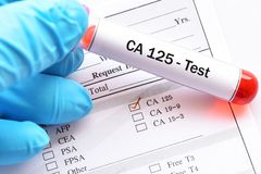 Blood sample for CA125 test Stock Photo