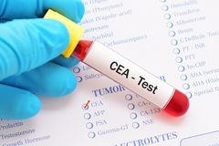 CEA test Stock Images