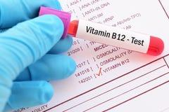 Blood sample for HBV viral load test. Blood sample with requisition form for HBV viral load test Stock Photos