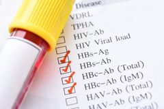 Hepatitis B virus test. Blood sample for hepatitis B virus test royalty free stock photography
