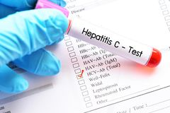 Hepatitis C virus test. Blood sample for hepatitis C virus test stock image