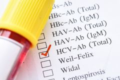 Hepatitis C virus test. Blood sample for hepatitis C virus test stock images