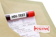 Blood sample with HIV test positive. Blood sample with HIV test positive and request laboratory form on white background Stock Photography