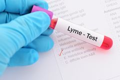 Lyme disease test. Blood sample for Lyme disease test Stock Photos