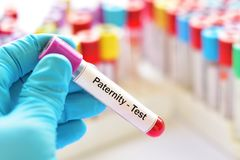 Blood sample for paternity test. Test tube with blood sample for paternity test stock photos