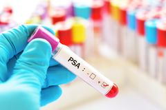 PSA positive blood sample. Blood sample positive with PSA, prostate specific antigen royalty free stock photo