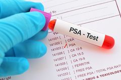 PSA test. Blood sample for PSA test, diagnosis for prostate cancer royalty free stock photos