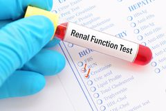 Renal function test Royalty Free Stock Images