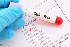 CEA test Royalty Free Stock Photo
