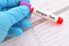 Dengue virus test. Blood sample with requisition form for dengue virus test royalty free stock photo