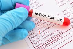 Hepatitis C viral load test. Blood sample with requisition form for hepatitis C viral load test Royalty Free Stock Image