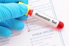 Rheumatoid factor test. Blood sample with requisition form for rheumatoid factor test Stock Image