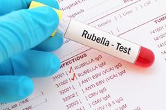 Rubella virus test. Blood sample with requisition form for rubella virus test stock photography