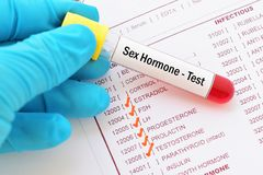 Sex hormone test. Blood sample with requisition form for sex hormone test Royalty Free Stock Photos