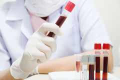 Blood sample Stock Image