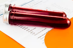 Blood sample in test tubes with health analysis screening report.  royalty free stock photography