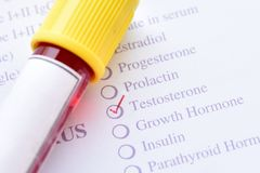 Testosterone hormone test. Blood sample for testosterone hormone test Royalty Free Stock Images