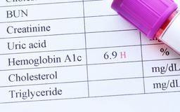 Abnormal high HbA1c test result. Blood sample tube with abnormal high HbA1c test result Stock Photos
