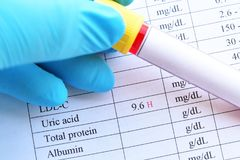 Abnormal high uric acid test result. Blood sample tube with abnormal high uric acid test result royalty free stock photos