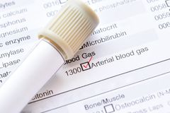 Blood sample tube for arterial blood gas test. Blood sample tube with laboratory requisition form for arterial blood gas test royalty free stock photo