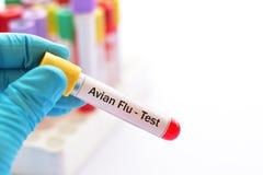 Blood for Avian Flu test. Blood sample tube for Avian Flu test Stock Images