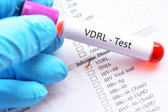 Blood sample tube for VDRL test. Blood sample tube with laboratory requisition form for VDRL test, diagnosis for syphilis infection stock photo