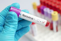 Norovirus positive blood sample. Blood sample tube positive with Norovirus test Royalty Free Stock Images