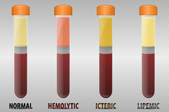 Blood serum common types Royalty Free Stock Photography