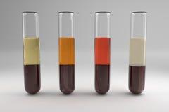 Blood serum common types Royalty Free Stock Photo
