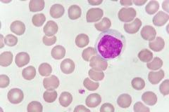 Blood smear of chronic lymphocytic leukemia Royalty Free Stock Photography