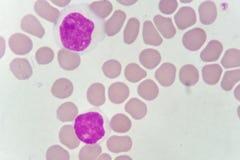 Blood smear of chronic lymphocytic leukemia Stock Images