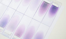 Blood smear test or blood film. Two slides and a drop of blood a Royalty Free Stock Photography
