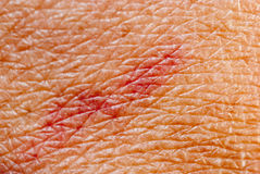 Blood stasis skin texture Royalty Free Stock Image
