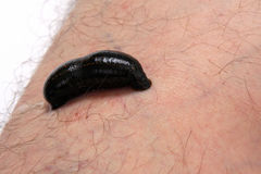 Blood sucking leech on man leg Stock Photos